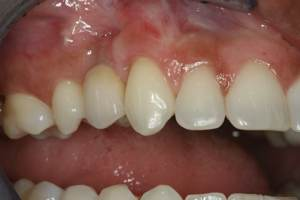 Gingival Grafting Post Op